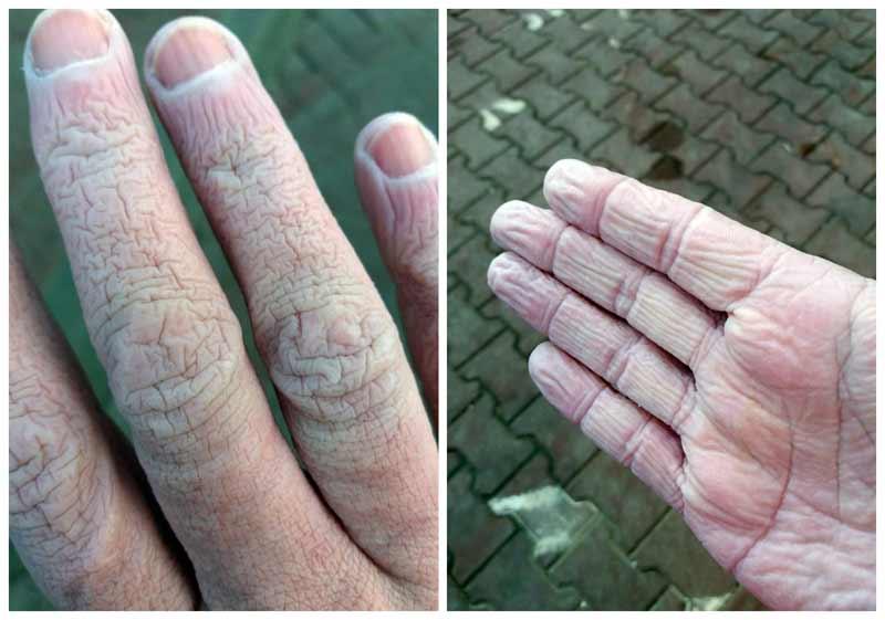 Cum arată mâinile unui cadru medical după 12 ore de muncă