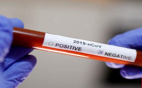 Grupul de Comunicare Strategică: 5.028 de cazuri noi de infectare cu noul coronavirus, cel mai mare bilanţ zilnic de la declanşarea pandemiei / 82 de decese, 782 de pacienţi internaţi la ATI /În Bucureşti, incidenţa cumulată a cazurilor creşte la 3,33